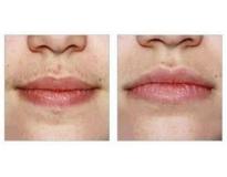Clínica de estética depilação a laser preço Ana Rosa