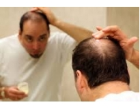 clínica de estética para alopécia preço no Centro