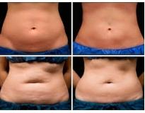 clínica de estética para gordura localizada no Pari