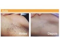 Clínicas de estética depilação a laser no Campo Belo