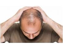 clínicas de estética para alopécia em Interlagos