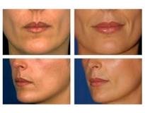 clínicas de estética para preenchimento facial no Pari