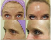 onde encontrar Clínica estética para botox no Brás